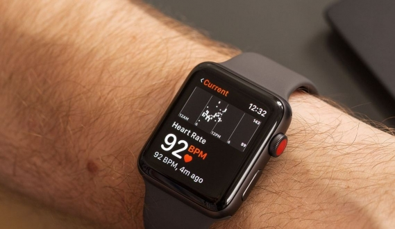 Apple Watch EKG ile yine hayat kurtardı!