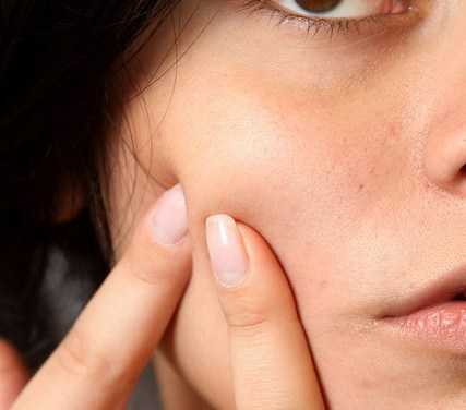 Does Argan Oil Help To Treat Acne?