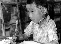 Photograph of Hiroshima survivor - atomic bomb