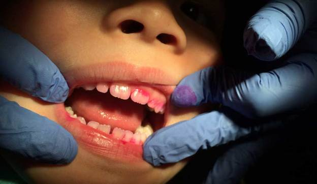 FDA Deserves Some Blame for Unnecessary Teeth Drilling