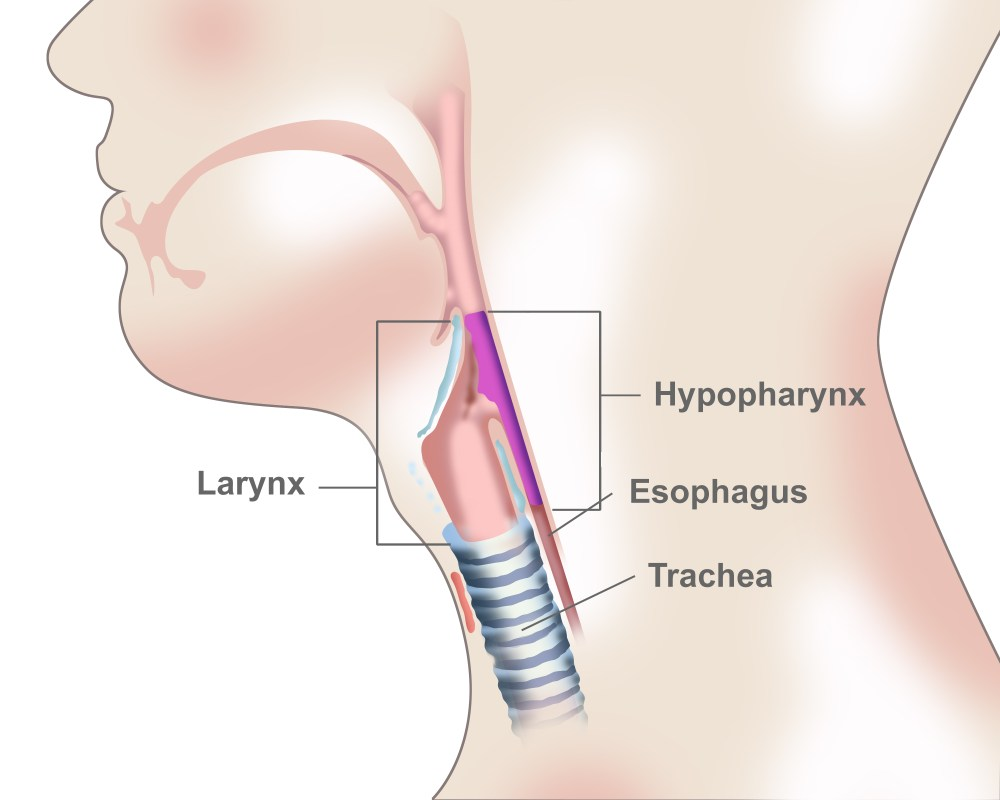 medium resolution of hypopharyngeal cancer overview