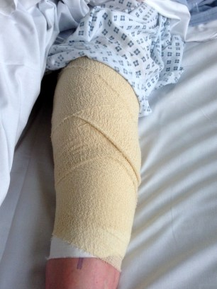 After surgery to replace left knee