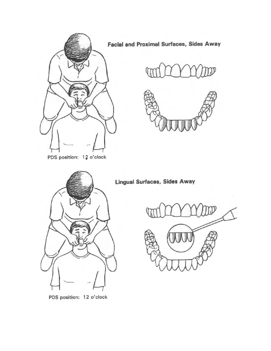 Figure 3-16. Positioning for mandibular anterior teeth