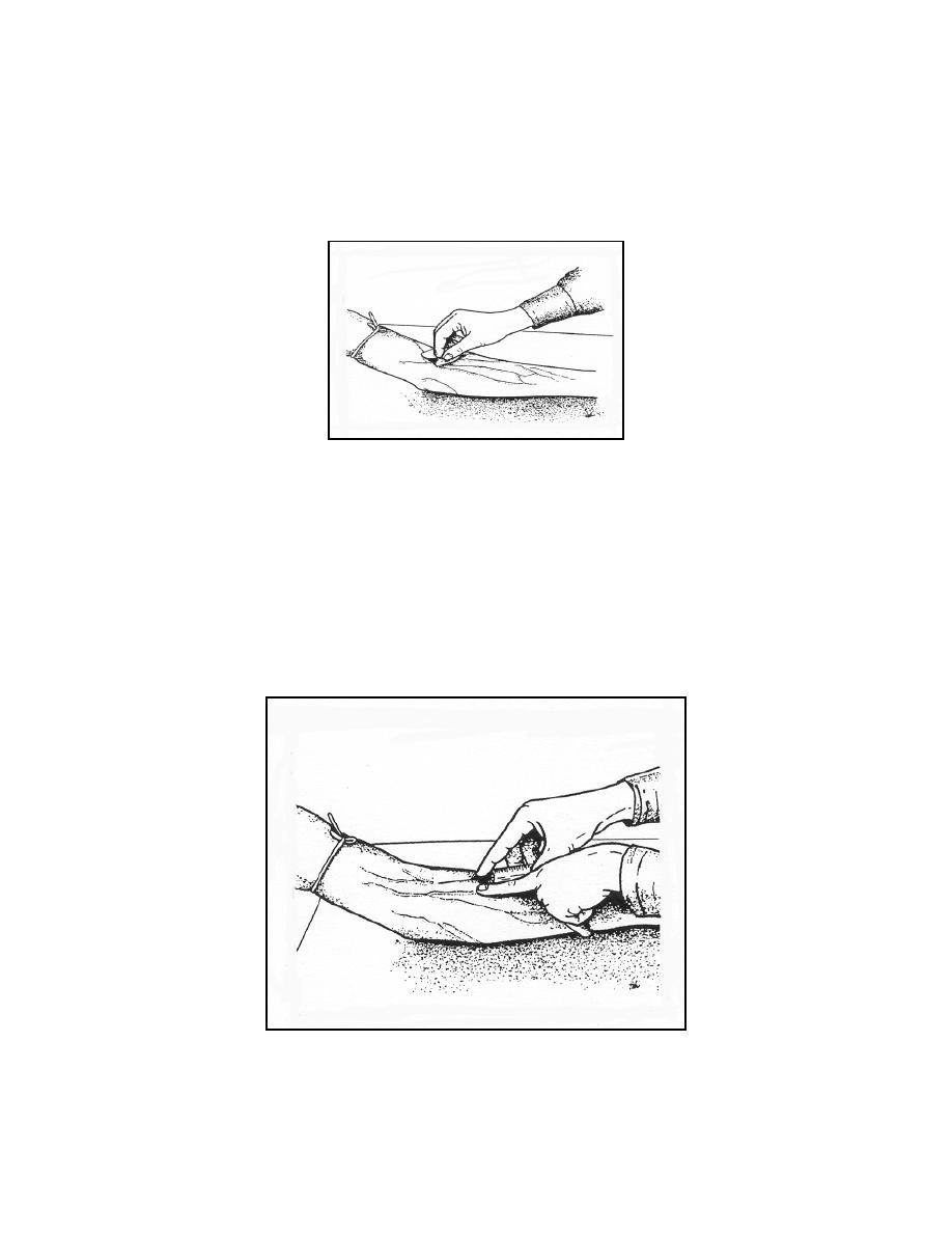 Figure 3-2b. Venipuncture procedure: Clean the puncture