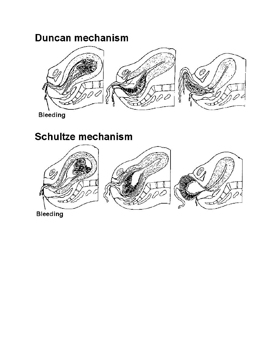 Figure 2-9. Placental separation and delivery