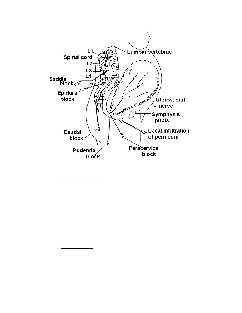 Figure 4-4. Injection sites for regional anesthetics