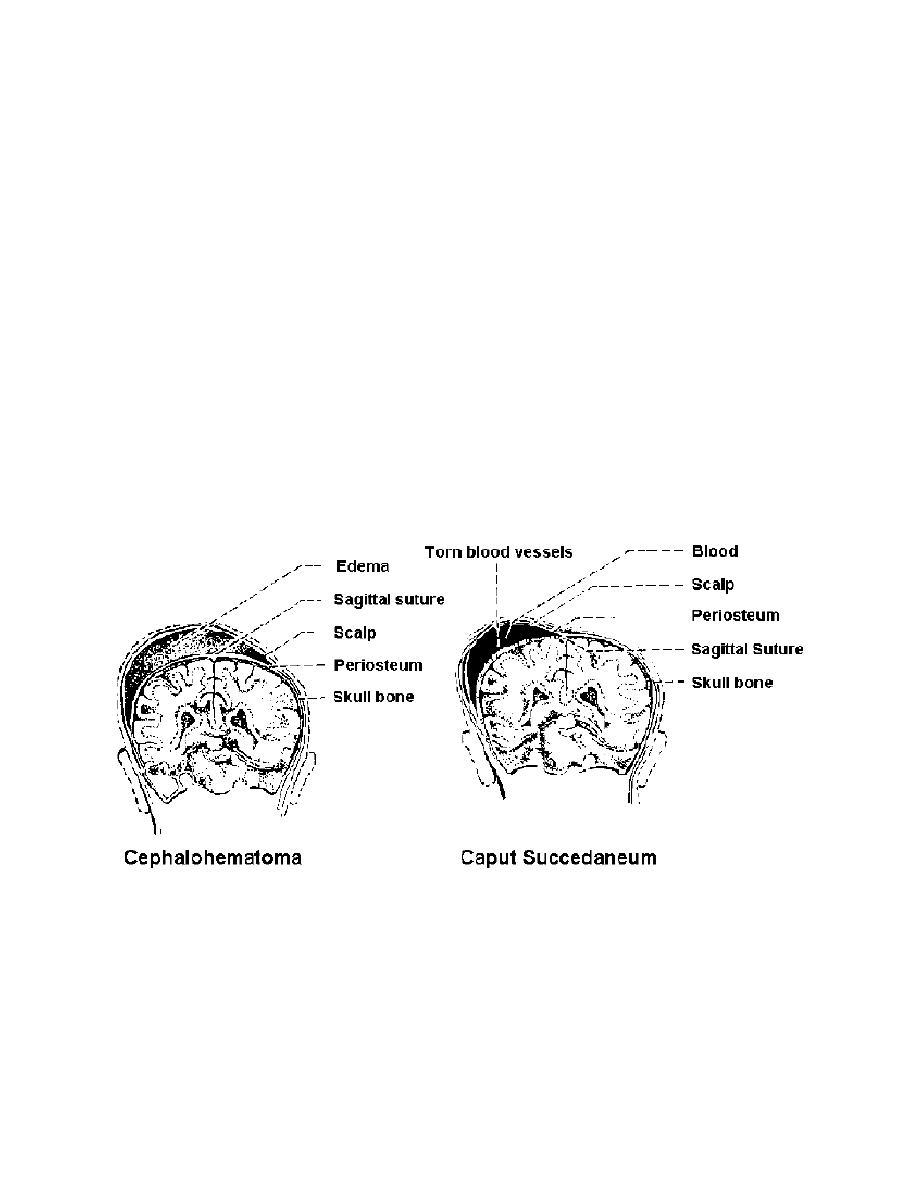 Figure 7-4. Cephalhematoma and caput succedaneum