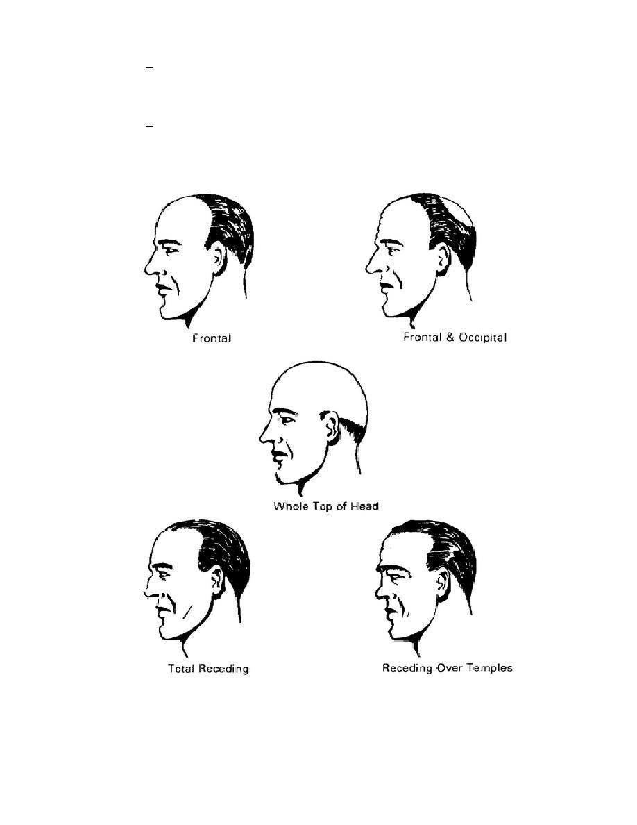 Figure 5-7. Types of Baldness.