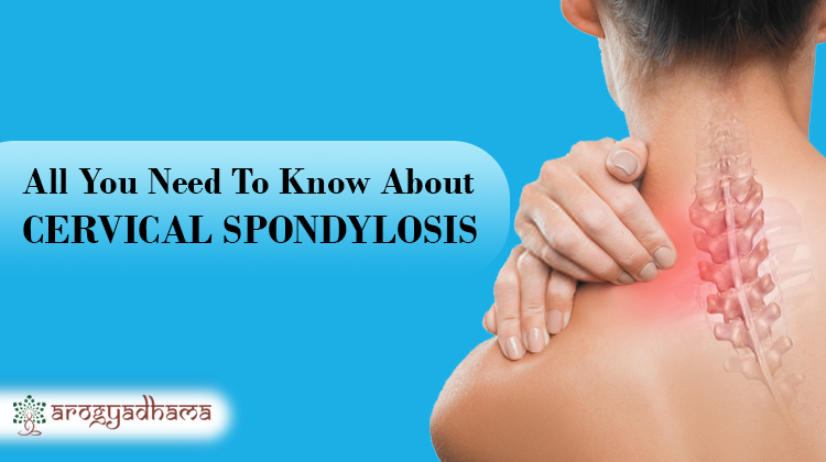 All You Need To Know About Cervical Spondylosis