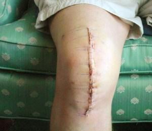 cicatrice opération genou