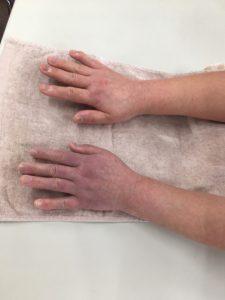 冬になるとささくれはどうしてできるの?手をしっとりと保つ方法とは?