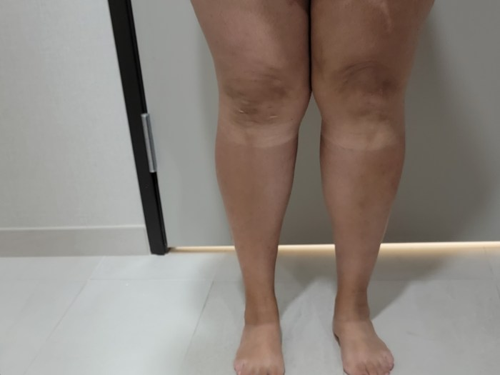 Legs with weird tan lines