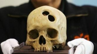 Los Incas: brillantes en cirugía craneal