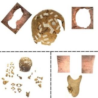 Detalles de los orificios y laceraciones encontrados en los cráneos y huesos de la mándibula