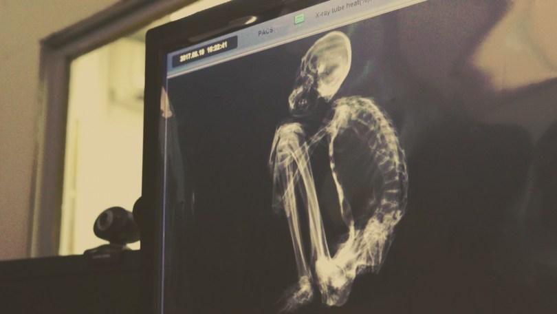 mumia-peru-raio-x