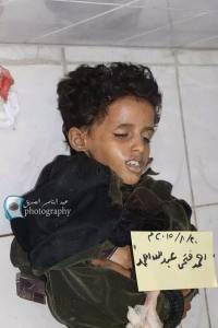 001_Anak_Anak_Yaman
