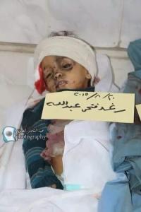 005_Anak_Anak_Yaman
