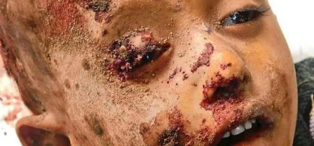 yemeni-victims-750x350