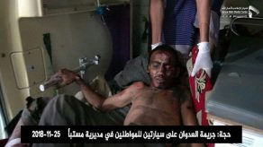 Korban luka oleh serangan Saudi
