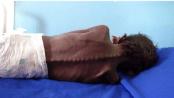 Kelaparan di Yaman