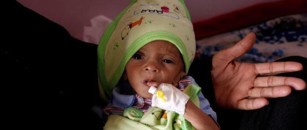 Yaman, Kelaparan di Yaman, Timur Tengah