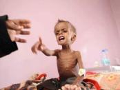 Yaman, Kelaparan di Yaman, Perang Yaman