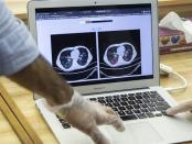 Iran Ciptakan Teknologi untuk Diagnosis COVID-19