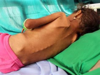 Peringatan PBB: Rakyat Yaman Bukan Akan Kelaparan, Tapi Sudah Kelaparan