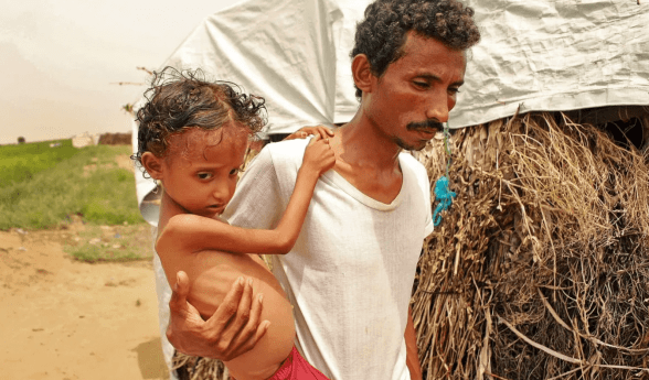 IOM: 600 Warga Yaman Terpaksa Mengungsi di Bulan Januari