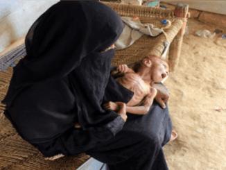 New York Times: 400 Ribu Anak Yaman Terancam Kelaparan