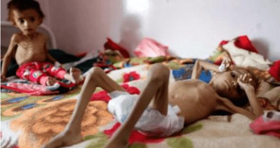 Bank Dunia: 70 Persen Penduduk Yaman Berisiko Kelaparan