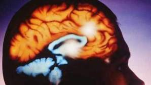 La ameba come cerebros