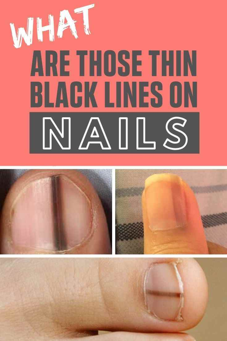 Black Line On Nails : black, nails, Black, Lines, Nails, Possible