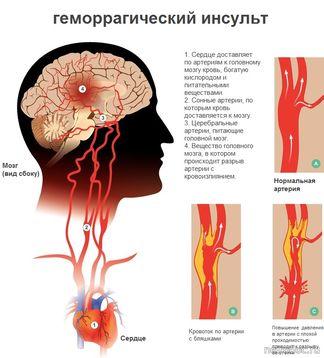 blodkärl i hjärnan som brister