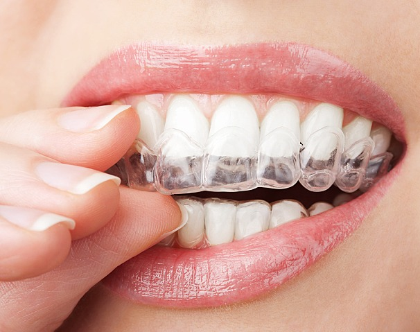 Simple Guide to Teeth Whitening