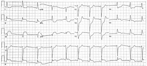 Validation of the modified Sgarbossa criteria for acute coronary occlusion  in the setting of left bundle branch block: A retrospective case-control  study - ScienceDirect