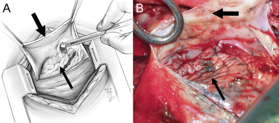 Right Vats Lysis Of Adhesions Total Decortication