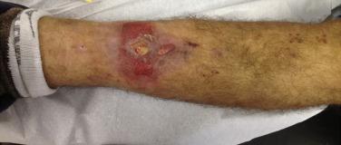 Infecção no trajeto do pino de Shanz.