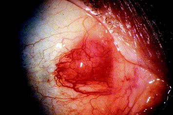 Histoplasma granuloma of the conjunctiva - ScienceDirect