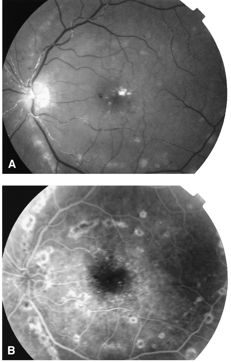 A Diabetic 64-Year-Old Woman With A 20-Day History Of Fever And Headache  Reported Blurred Vision In Both Eyes. Visual Acuity Was 20/50 In The Right  Eye And