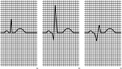 Borderline Q-waves in individuals without overt cardiovascular disease:  Relations with adiposity, subclinical atherosclerosis and vascular  stiffness - ScienceDirect