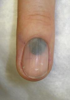 Image result for blue lunulae