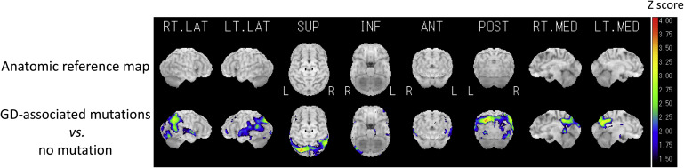 Regional cerebral blood flow in the group with GD-associated mutations compared ...