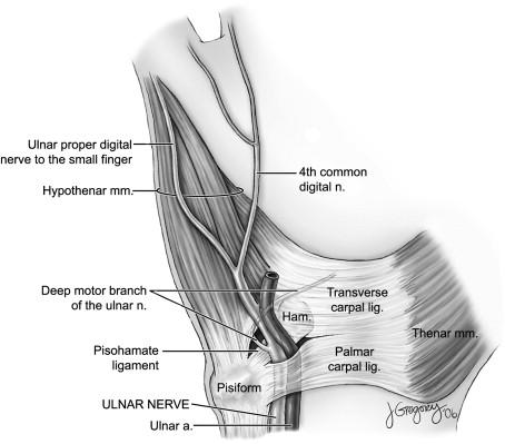 ulnar nerve diagram 1978 cb400 wiring anatomy sciencedirect download full size image