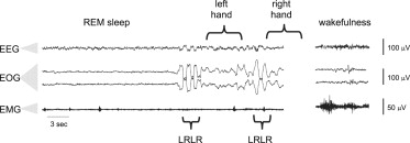 Exemplary Lucid REM Sleep as Captured by Polysomnography during Simultaneous ...