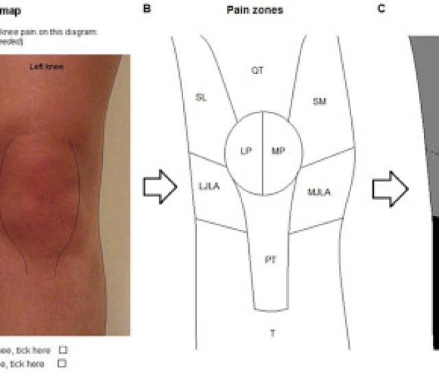 Clinically Relevant Changes In Pain And Physical Function