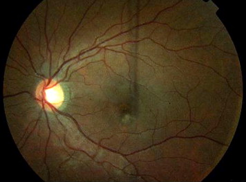Choroidal neovascularization in a young, healthy eye after LASIK ...