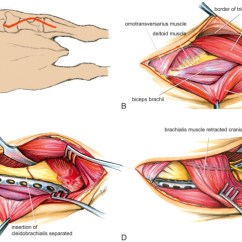 Triceps Brachii Diagram Faucet Stem Muscle An Overview Sciencedirect Topics Sign In To Download Full Size Image