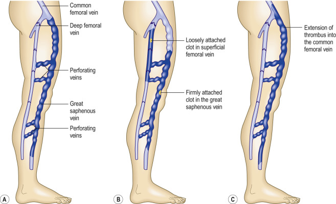 veins in the foot diagram 5 1 home theater circuit superficial thrombophlebitis an overview sciencedirect topics sign to download full size image