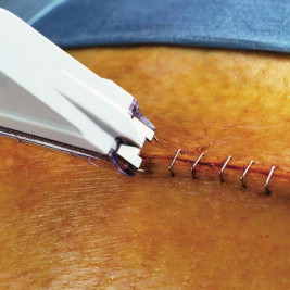 surgical staple an overview